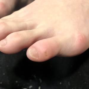 魚の目と足の指
