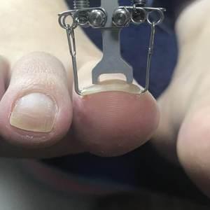 足の巻き爪